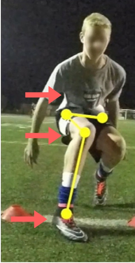 Misaligned movement soccer player injury